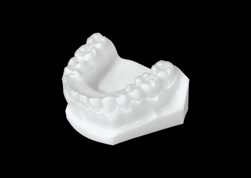 Essix (Clear Retainer) Lower - Universal Orthodontic Lab